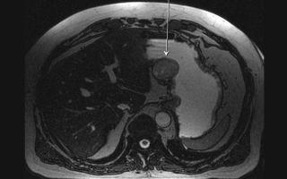 Методы диагностики и дифференциальной диагностики рака желудка