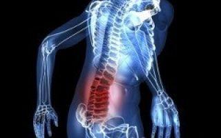 Диагностика и лечение кисты позвоночника — есть ли альтернатива операции?