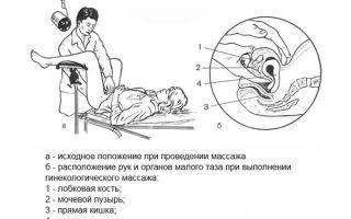 Все методы лечения загиба матки – терапия, операция, гимнастика, массаж