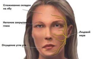 Виды невритов, симптомы острого и хронического воспаления нерва, причины