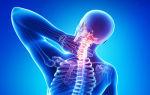 Инфекционные поражения позвоночника – что может скрываться за болями в спине?