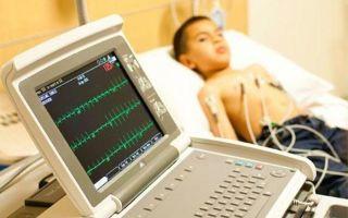 Причины блокады сердца у детей — первая помощь при кардиоблокадах у ребенка