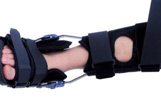 Операция в лечении ахиллова сухожилия — показания, реабилитация