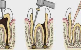 Депульпирование — видео этапов, последствия удаления пульпы зуба, цена