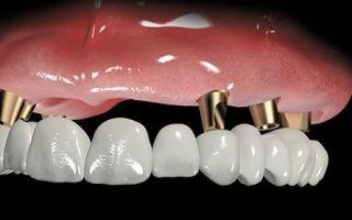 Виды имплантации зубов с немедленной нагрузкой — техника выполнения и блестящий результат
