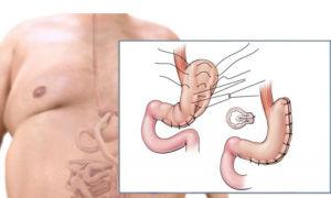 Все виды операций по уменьшению желудка — кому и когда они показаны?
