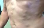 Липома, или жировик – симптомы и когда необходима операция