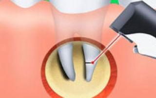 Острый, хронический периодонтит у взрослых и детей – как вовремя распознать периодонтит?