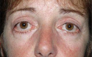 Как выполняют кантопексию и кантопластику — все виды пластики разреза глаз