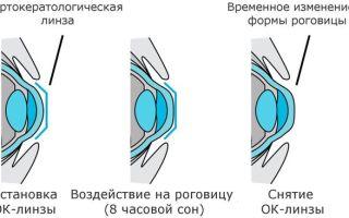 Линзы и очки при кератоконусе — показания и правильный подбор