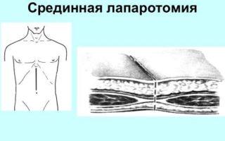 Симптомы перитонита — причины, диагностика, осложнения перитонита
