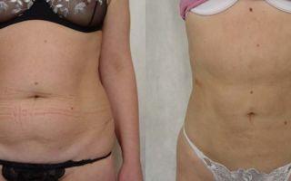 Контурная пластика тела, торсопластика — как сделать торс красивым