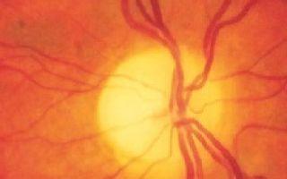 Атрофия зрительного нерва – причины, симптомы и современные методы лечения