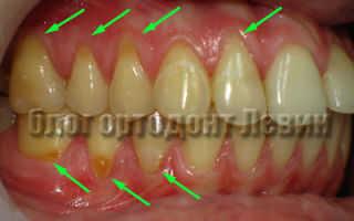 Френулотомия, лечение диастемы и др. — этапы подготовки к ортодонтическому лечении зубов