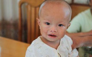 Правильная и неправильная форма черепа новорожденного ребенка, виды деформации головки – что является патологией?