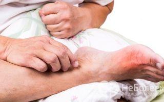 Отеки ног, как симптом – при каких заболеваниях отекают ноги, и к какому врачу обращаться?