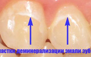 Почему болит зуб — все причины зубной боли и заболевания, которые её вызывают