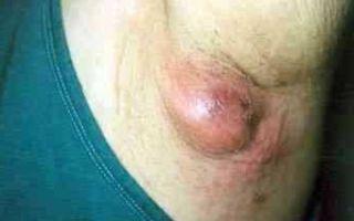 Воспаление потовых желез – способы лечения инфекционного заболевания