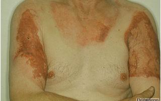 Особенности лечения рубцов и шрамов после ожогов – почему остаются послеожоговые рубцы, и как от них избавиться?