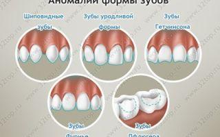 Гипоплазия зубной эмали наследуется — риски гипоплазии эмали