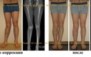 Неправильно сросшийся перелом – виды хирургических операций