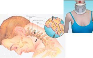 Современное лечение хлыстовой травмы шеи — последствия травмы