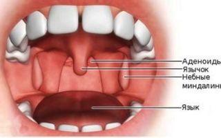Аденотомия — операция по удалению аденоидов. современные методы, этапы операции, отзывы