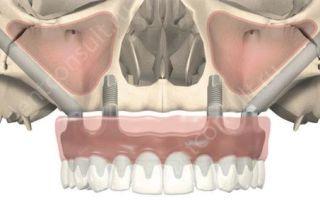 Пересадка кости — показания, этапы операции костной пластики