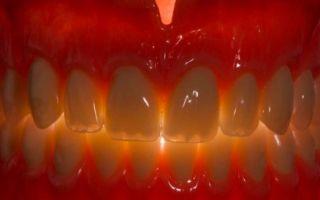 Когда своих не хватает. как восполнить отсутствующие зубы