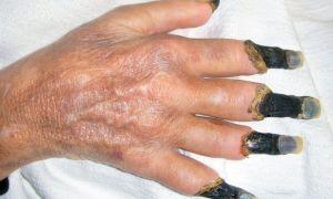 Гангрена – причины и симптомы, виды и стадии, диагностика и лечение