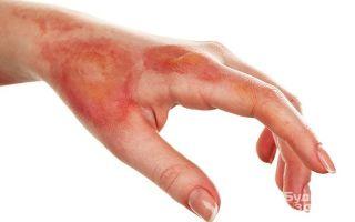 Ранняя некрэктомия при ожогах, как профилактика ожоговой болезни — виды, преимущества, показания