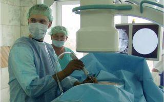 Федеральный центр нейрохирургии боли — полная информация о фцнейрохирургии боли,  контакты, перечень услуг