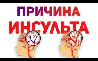 Инсульт — виды инсультов по медицинской классификации