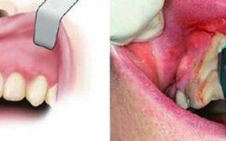 Причины периостита челюсти – диагностика и лечение периостита челюсти у детей и взрослых