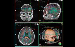 Глиома головного мозга: методы лечения и прогноз полного выздоровления