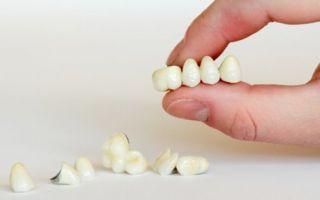 Виды зубных коронок — какие коронки лучше для протезирования зубов?