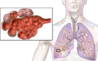 Эмфизема легких – кто в группе риска и способы лечения заболевания