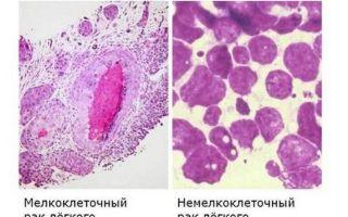 Рак легких — признаки и симптомы, методы диагностики рака легких