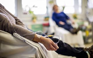 Методы лечения рака кожи — иммунотерапия, трансплантация, радиотерапия