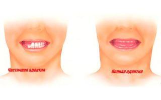 Причины частичного или полного отсутствия зубов – виды адентии и её последствия