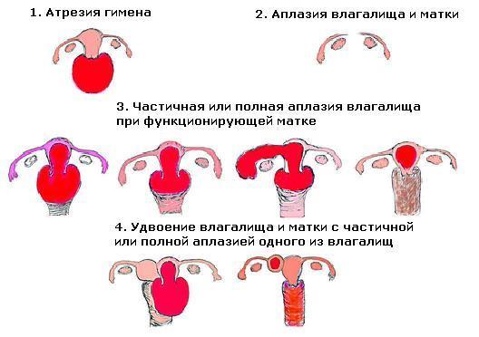 Виды половых аномалий у женщин – диагностика аномалий женских половых органов