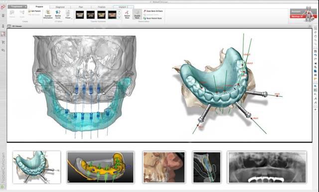 Виды современной имплантации зубов – новое в имплантации зубов сегодня