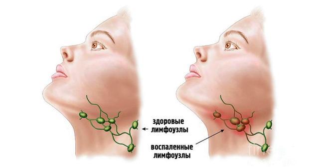 Лимфаденит – классификация, симптомы воспаления лимфоузлов и методы лечения