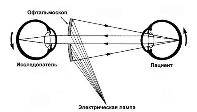 Виды глаукомы – почему возникает и как развивается глаукома у взрослых