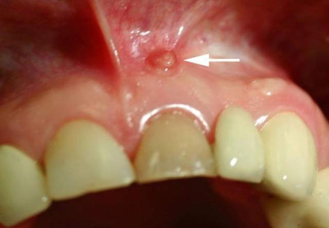Лечение и удаление кисты зуба – может ли киста зуба пройти сама?