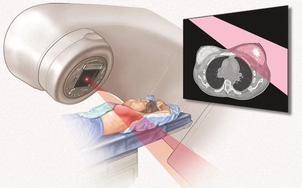 Лучевая терапия в онкологии – лечение и реабилитация после лучевой терапии