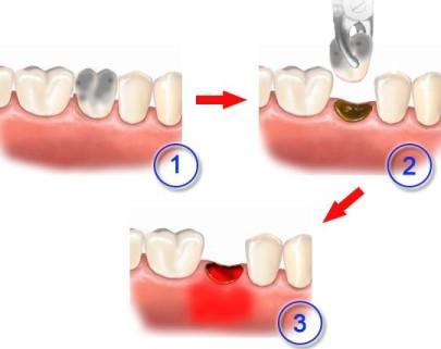 Альвеолит лунки после удаления зуба - причины, симптомы, лечение