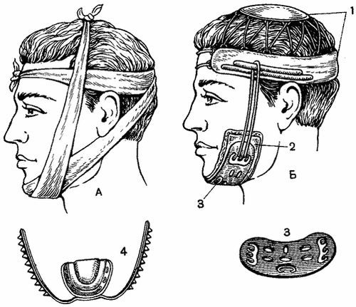 Лечение переломов и травм верхней челюсти, первая помощь при повреждениях