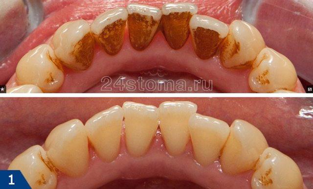 Причины зубного камня, методы удаления зубного камня - цены