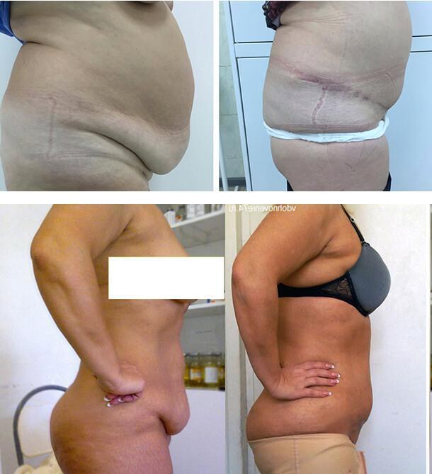 Панникулэктомия – операция по удалению кожно-жирового фартука на животе, показания к ней и результаты